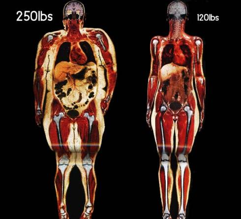 women-body-scans-natl-geographic-obesity