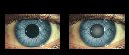 cataract-surgery-los-angeles-surgeon-dr-rajesh-khanna