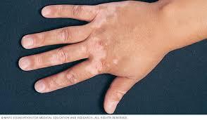 vitiligo.jpeg